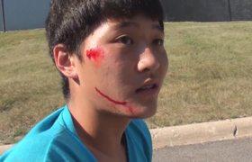 Worse skateboard fall