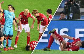 Barcelona vs Guangzhou Evergrande: Zou Zheng Horrific Injury Breaks His Leg