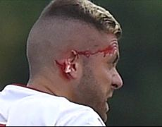 Jeremy Menez loses part of his ear in Lorient vs Bordeaux match