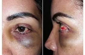 Tras 'hackeo', exhiben fotos de esposa de funcionario con golpes en la cara