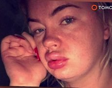 UK youngest lotto winner's face bloated after butt surgery