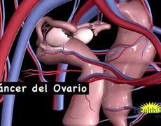 Aumento de peso y riesgo de cancer de ovario