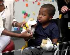 Hand Transplant Changes Zion's Life