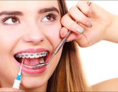 Diy Orthodontics: A Risky Business?