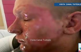 Teenager burns his face by accident with toxic plant