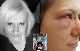 #Terrible: Woman suffers atrocious act of racism by 15 women