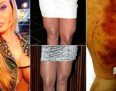 Andressa Urach Miss Bum Bum Brazil Serious Sick From Butt Injection
