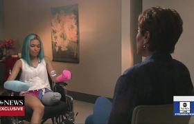 Teen recalls terrifying shark attack