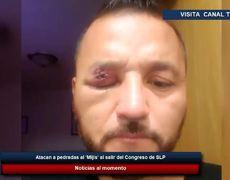 Atacan a pedradas al 'Mijis' al salir del Congreso de SLP
