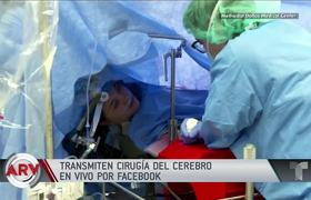 Transmit a brain surgery with awake patient on Facebook
