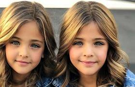 Clement twins considered the prettiest girls in the world