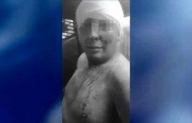Hombre asesinó y desolló a su esposa de 25 años en CdMx