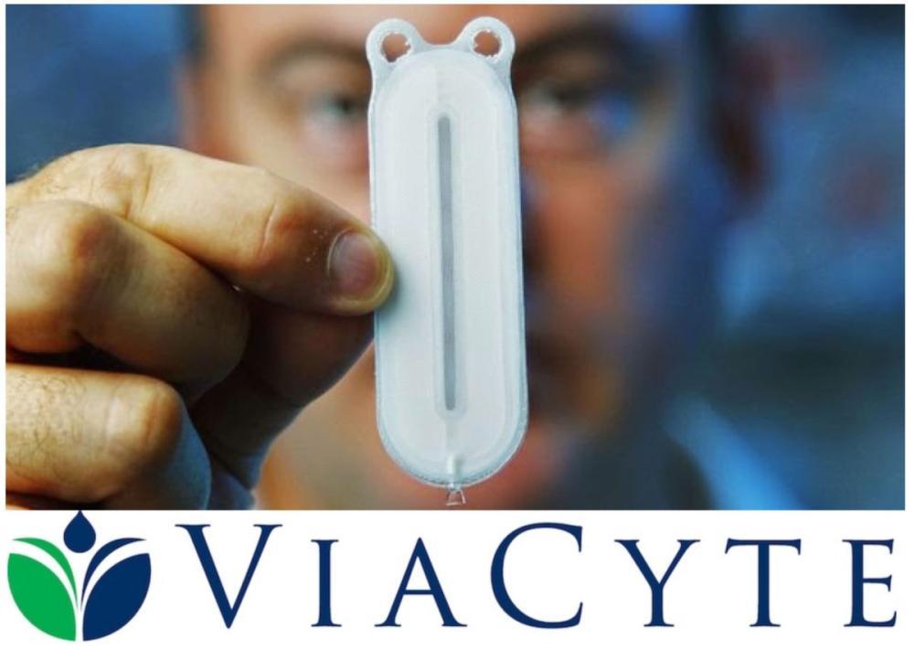 El implante de ViaCyte permite generar células productoras de insulina