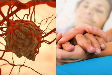 Nuevo uso de medicamento previene la multiplicación del cáncer
