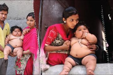 A sus ocho meses niña pesa 17 kg