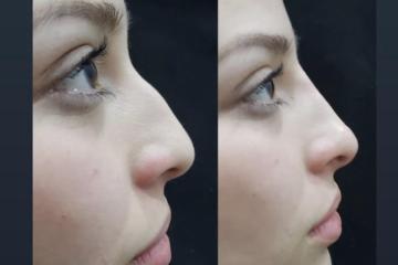 ¿Quieres corregir tu nariz? Doctor en Tijuana lo hace posible en...
