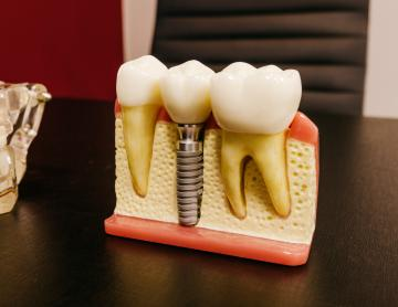 Did you lose a tooth? Dental implants can be your solution